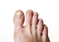 How to Best Treat a Toenail Infection