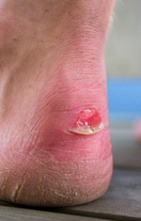 Why Do Blisters Develop?