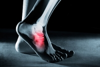 The Tibial Nerve and Tarsal Tunnel Syndrome