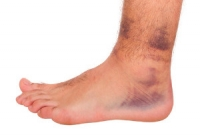 Are Foot And Ankle Injuries Common?