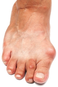 Possible Reasons Why Bunions May Develop
